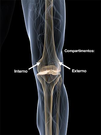 Dr. Marcelo Tostes Dr. Marcelo Tostes: Cirurgia - Osteotomia