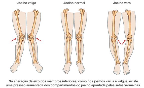 Dr. Marcelo Tostes Dr. Marcelo Tostes: Na alteração de eixo dos membros inferiores, como nos joelhos varus e valgus, existe uma pressão aumentada dos compartimentos do joelho apontada pelas setas vermelhas.