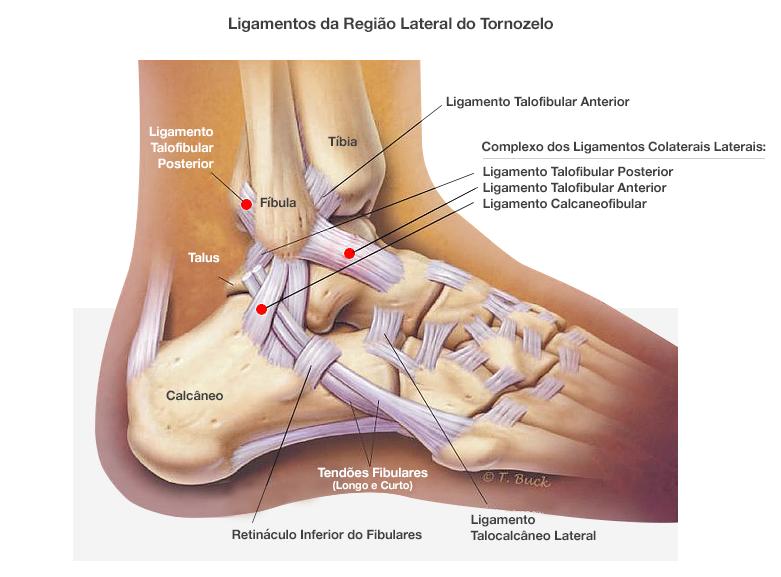 ligamentos+acometidos+no+entorse+de+tornozelo