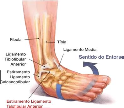 Dr. Marcelo Tostes – Ortopedia para Tornozelo e Pé